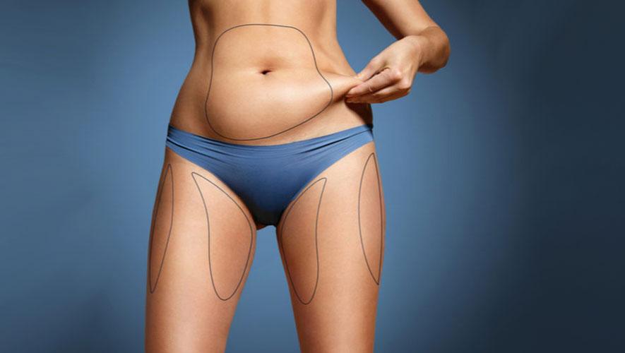 İdeal Vücut için Vaser Liposuction