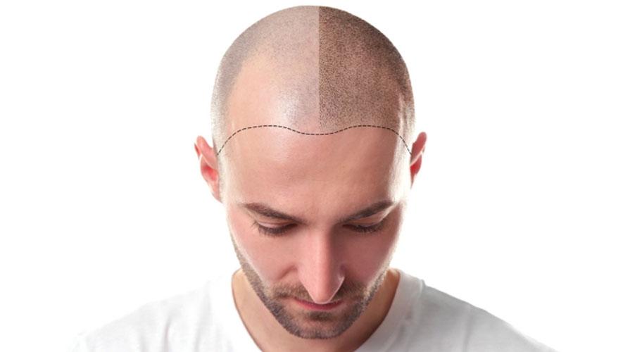 Kök Hücre Tedavisi ile Saç Ekimi