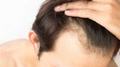 erkek saç analizi