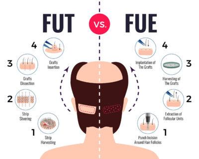 saç ekimi tedavisi