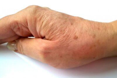 el leke tedavısı